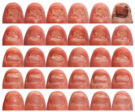 Йодинол от грибка ногтей: отзывы и способы применения | LS