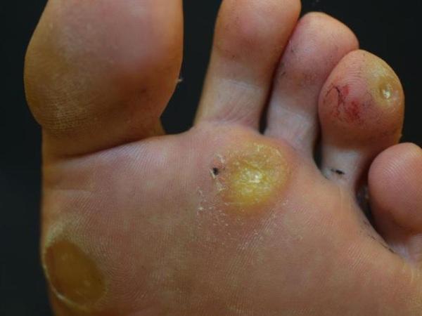 varicoză pe picioarele conului solid varicoză 1 etapa ce trebuie să faceți