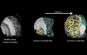 Identifican genes relacionados con la agresividad del cáncer según el sexo