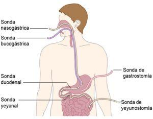 Nutrición enteral enfermos de Crohn