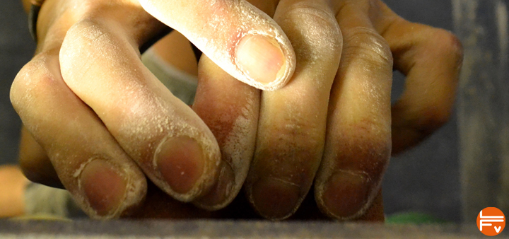 Arthrose doigts main grimpeurs escalade arthrosis finger