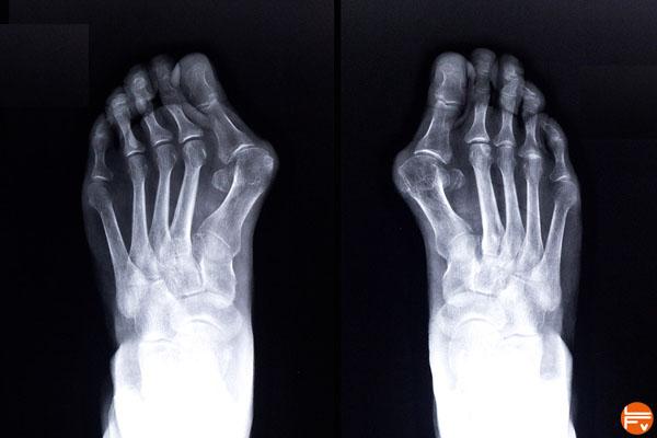 hallux-valgus-deformation-pieds-grimpeurs