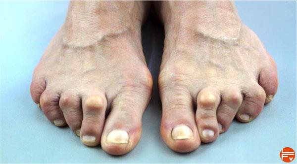 fourmillements dans les orteils