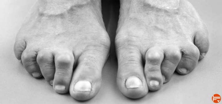 Bunions : climbers, stop forcing your