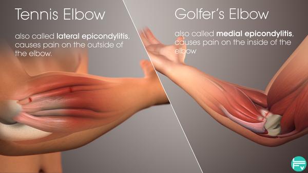 tennis-golf-climbing-elbow-epicondylitis