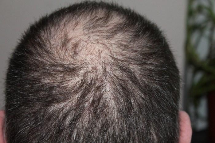 Hair, Man, Hair Loss, Head
