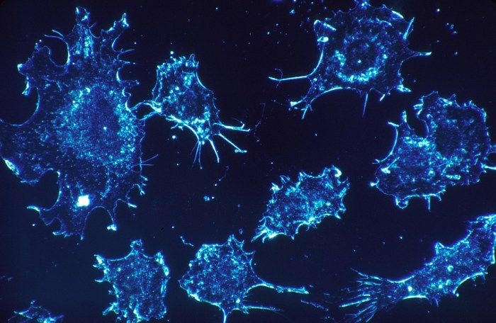 Cancer Cells, Cells, Scan, Electron Microscope Scan