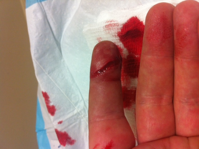 I Cut My Finger