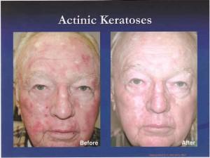 Blu U Light Treatment For Skin Cancer Decoratingspecial Com