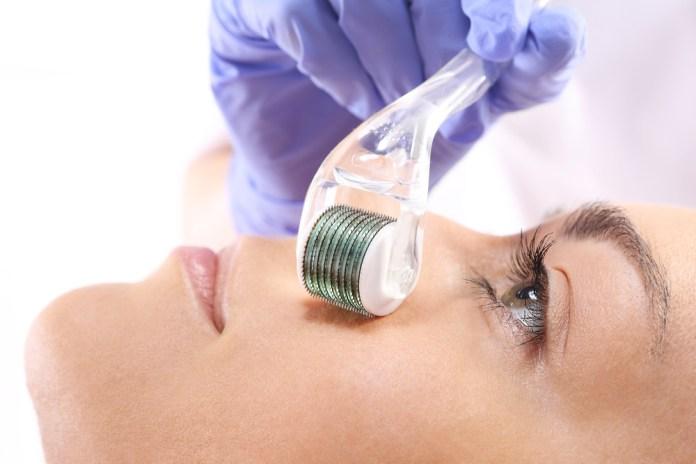 Micro-Needling-traitement-aiguilles-peau