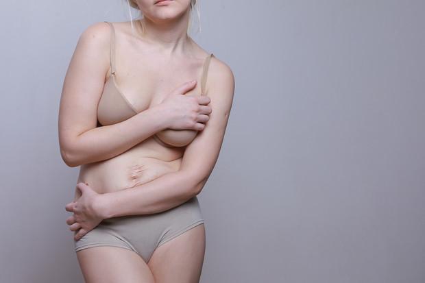 complexes-corps-femmes-poids