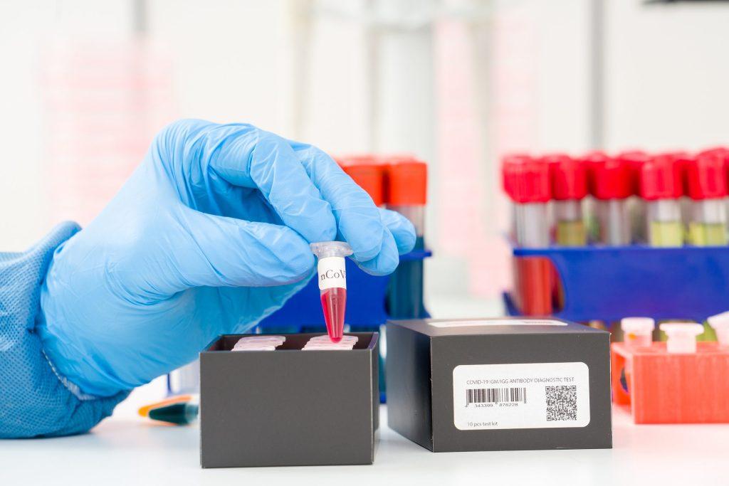 Coronavirus (COVID-19) IgM/IgG Rapid Test Kit.