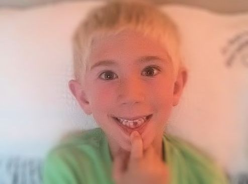 Remember Losing Your First Tooth?