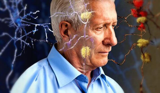 Senior homme avec Alzheimer