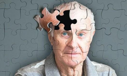 5 señales que preceden al Alzheimer