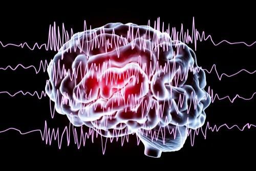 Cerebro con crisis epiléptica