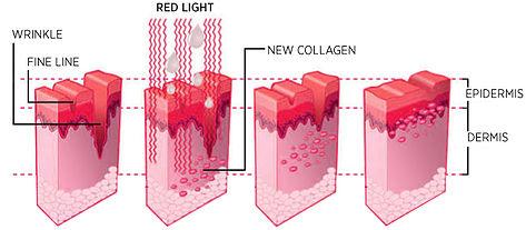 Firewave Lampada Infrarossi - Ringiovanimento della pelle