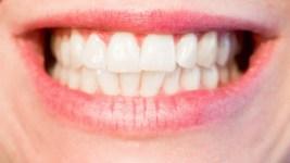 Les raisons qui nous poussent à aller voir le dentiste