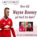 How did Wayne Rooney get back his hair?