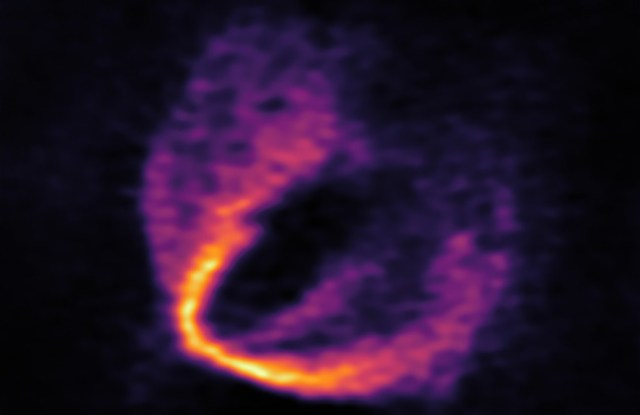 Bagian data ALMA yang memperlihatkan terjadinya gangguan pada rotasi Keplerian dan bukti keberadaan exoplanet. Kredit: ESO, ALMA (ESO/NAOJ/NRAO); Pinte et al.