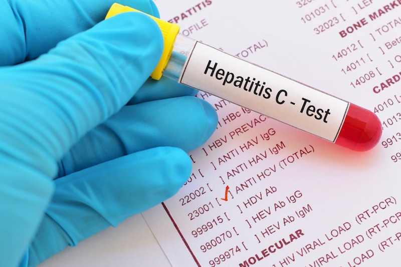 Foto de un frasco de sangre con una etiqueta que dice: examen de Hepatitis C