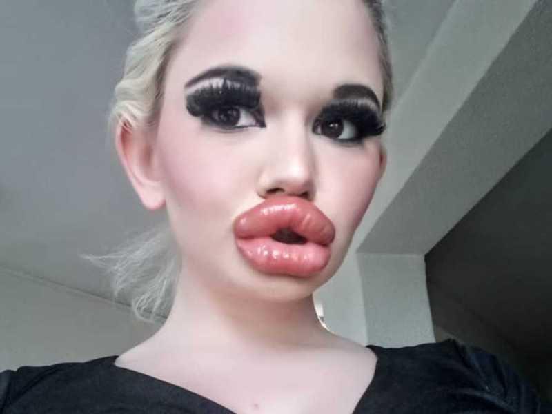 Barbie-Humana-labios-irreales