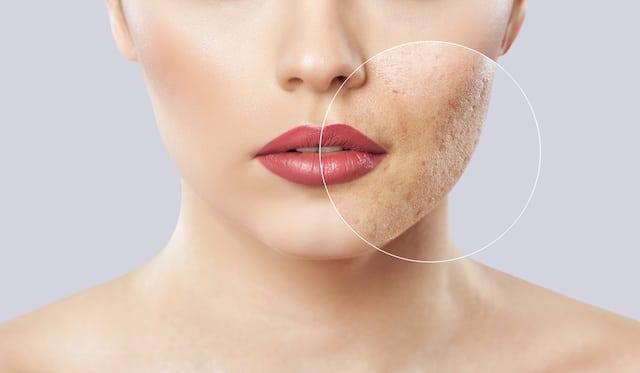 Cómo eliminar las cicatrices y manchas de acné