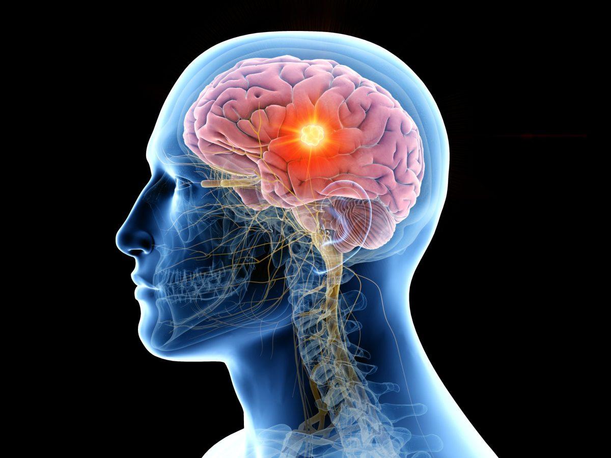 niebla-mental-en-pacientes-covid-puede-durar-meses-tras-recuperacion
