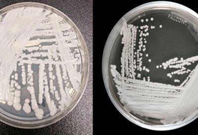Candida auris, el agresivo hongo multirresistente: mitos y verdades