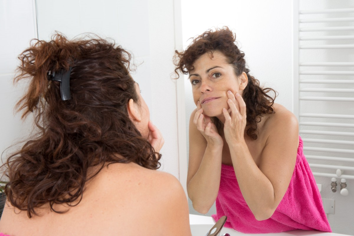 What are the causes of excess hair in women?