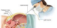 Laparoscopic-Surgery-for-Endometriosis