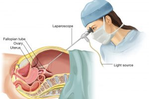 Laparoscopic-Surgery-for-Endometriosis