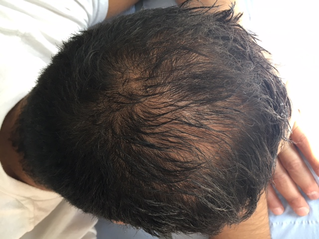 Hair Loss Prevention