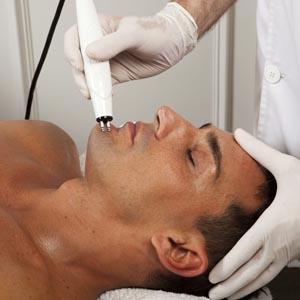 radiofrecuencia facial - que es