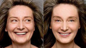 Radiofrecuencia facial - Resultados