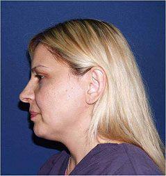 Cara antes del tratamiento con tripollar