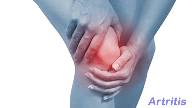 Hierbas Para Combatir La Artritis