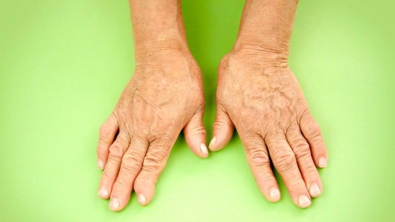 4 Superalimentos Que Eliminan El Dolor De La Artritis Rápidamente