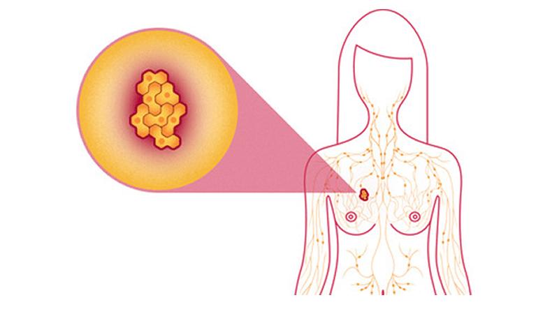 10 Síntomas del Cáncer de Mama que Usted Necesita Saber