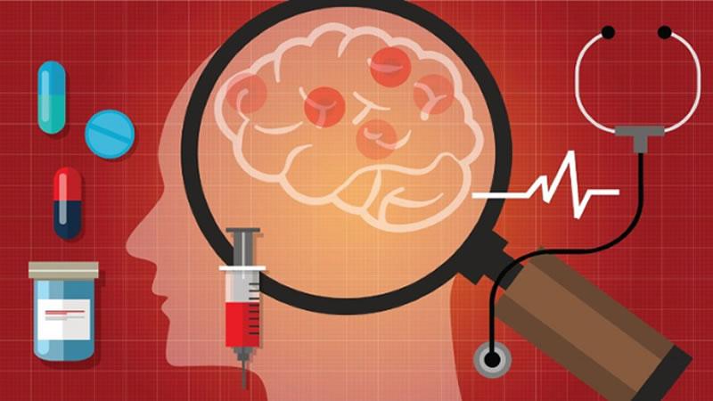 10 Super Alimentos Que Reducen El Riesgo de Padecer Alzheimer