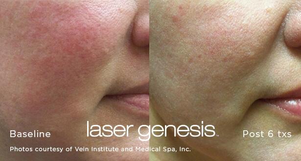 Lasera.ch, photo Laser Genesis 5