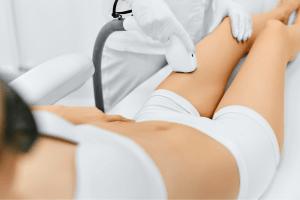 Leg Laser Treatment