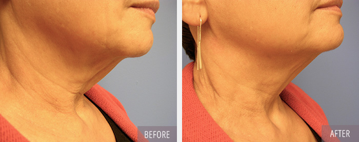 Fat Reduction Combo with Skin Tightening