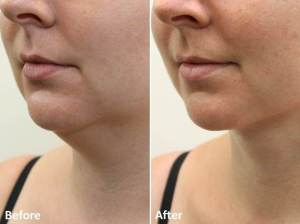 Dr Darm LipoLift Neck Before and Afters JA (2)