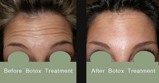 BotoxBeforeAfter1