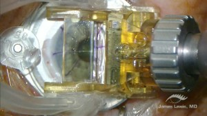 SBK-LASIK 90 H 1