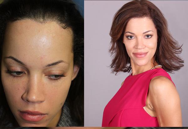 Dr. John Kahan Platelet Rich Plasma Technique SmartPRP® For Hair Restoration Before and after