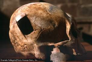 Cranio precolombiano che presenta la tecnica delle linee rettangolari intersecantisi