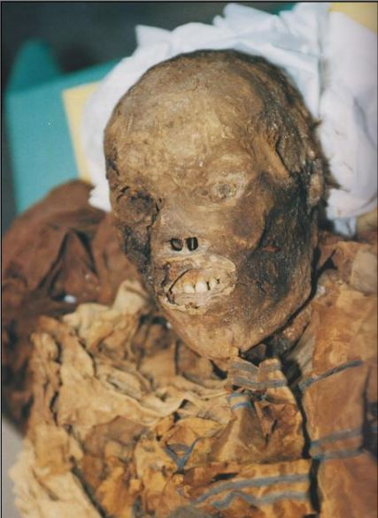 Il volto di Cangrande mummificato, come è apparso al momento dell'apertura del sarcofago, il 12 febbraio 2004 (foto Umberto Tomba, Verona)