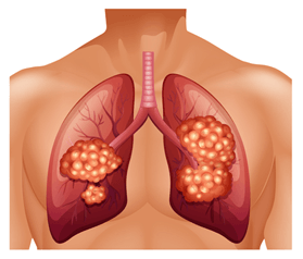 lung 3